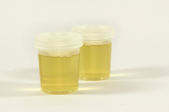 Because of the level of privacy required for a donor to produce a urine sample, it is possible for them to switch samples